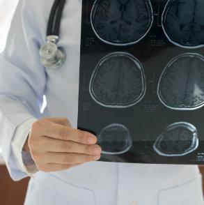 Neurologia Koło